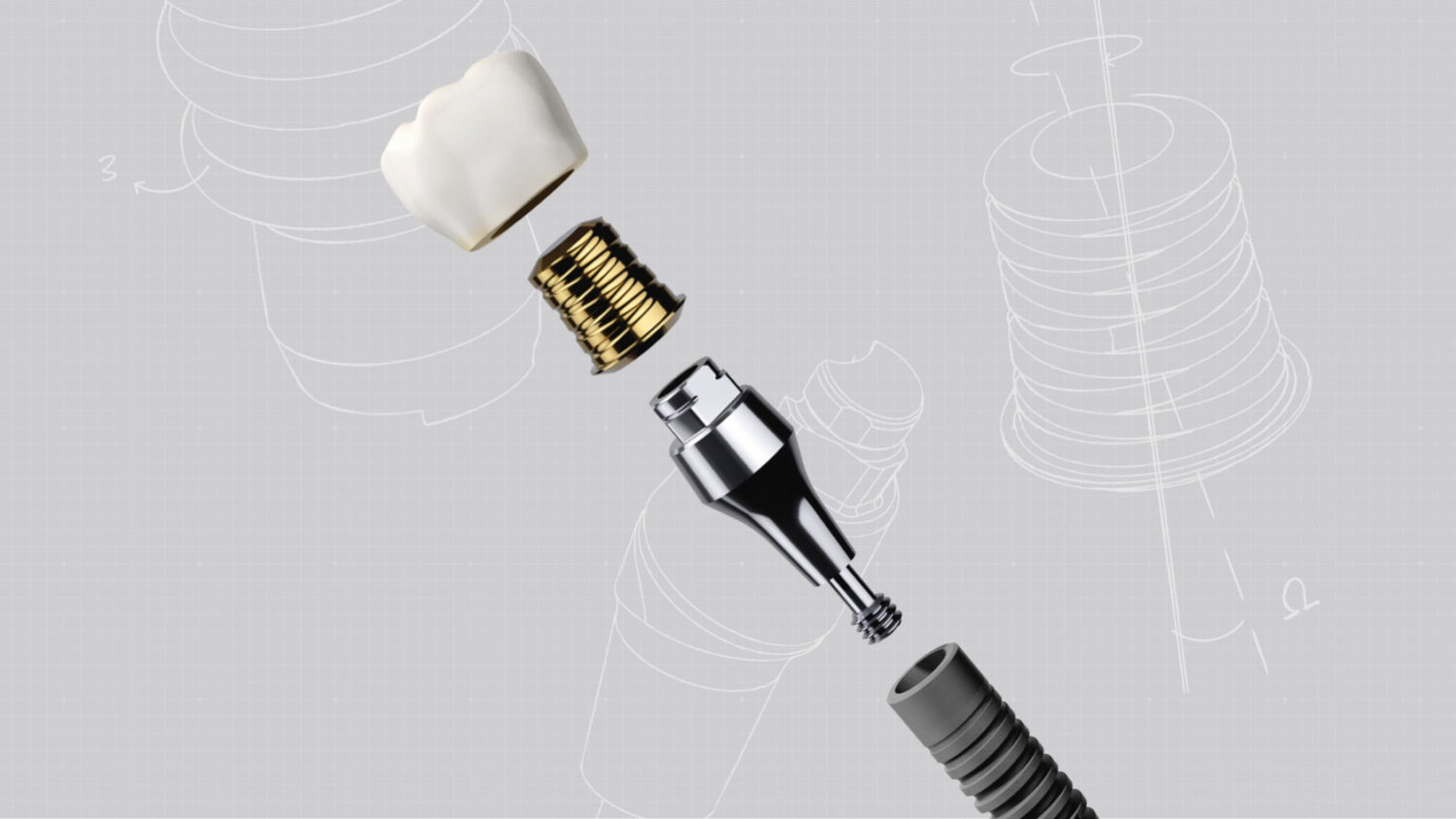 Acuris Is Here To Redefine Retention Dentsply Sirona